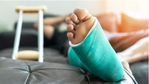 Concept of compensable work injuries in Fort Myers, man with broken foot