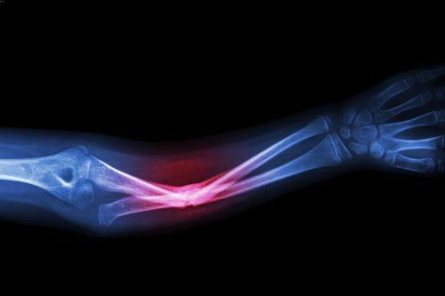 X-ray of broken bone, example of compensable work injuries in Tampa