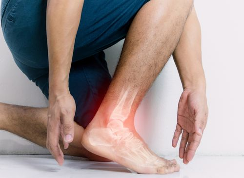 Man holding ankle with a xray scan concept of sprain / ligament injury